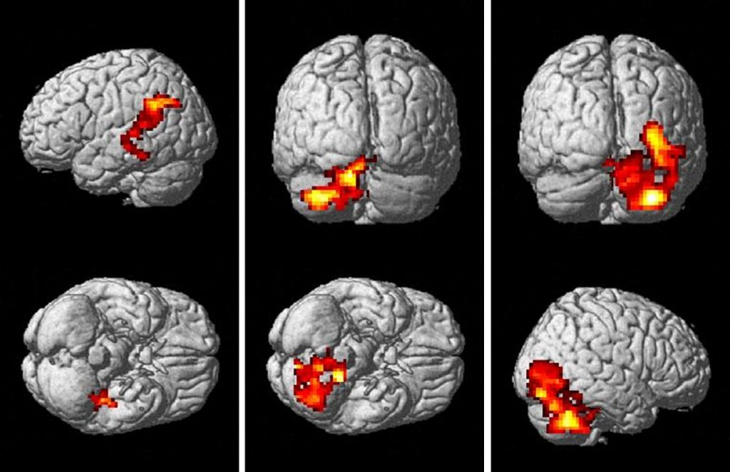 A Beautiful Mind: Analyzing How Schizophrenia is Portrayed ...